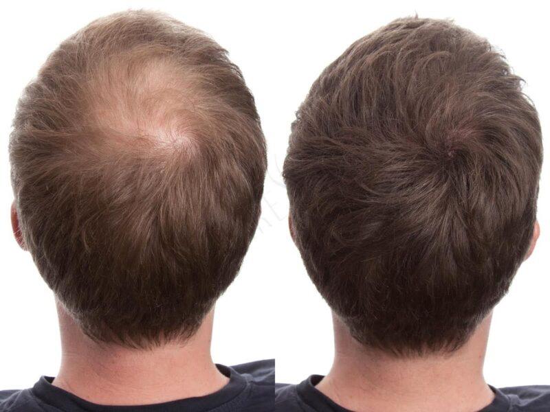 pourdre densifiante calvitie cheveux